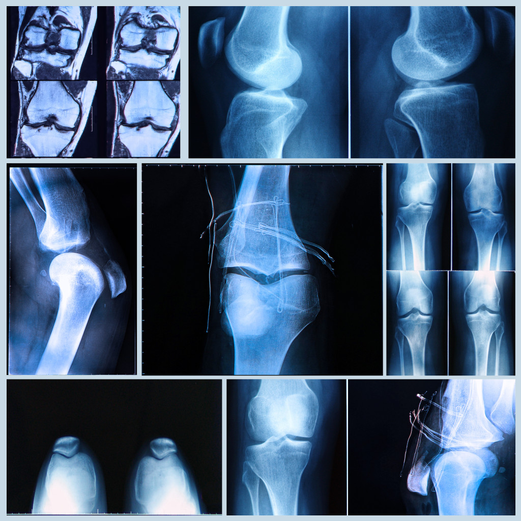 ACL Reconstruction Knee medical exam